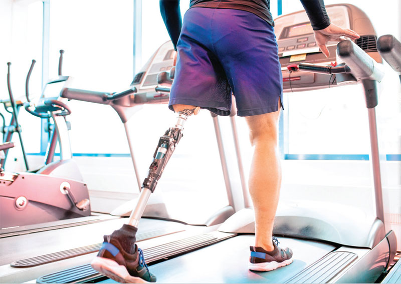 Leg amputee on treadmill for physical therapy and rehabilitation